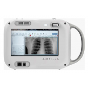 AiRTouch hordozható röntgen